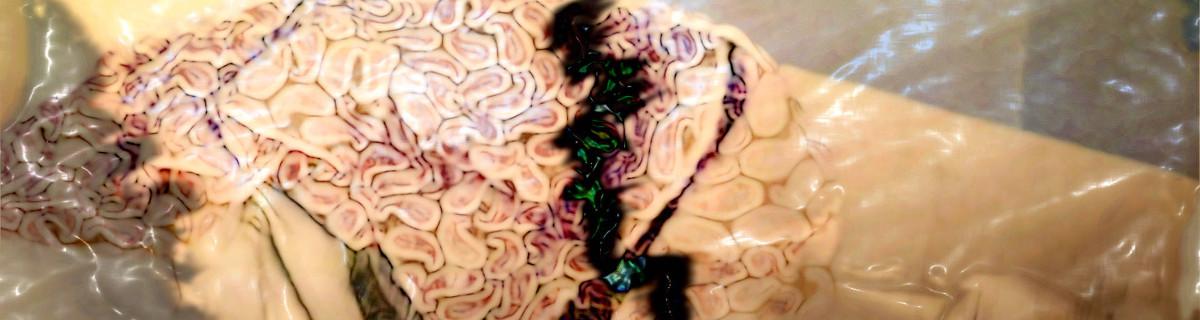 Ein Masse, ähnlich gemasert wie die Windungen eines Gehirns